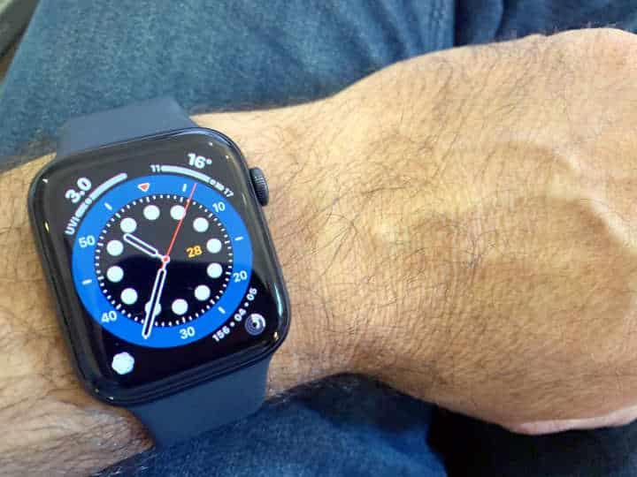 Luxury Apple Watch