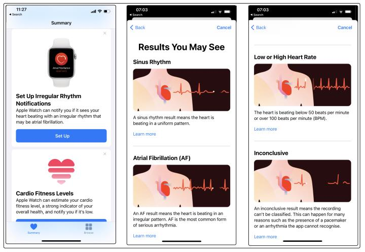 Apple Health monitoring and ECG